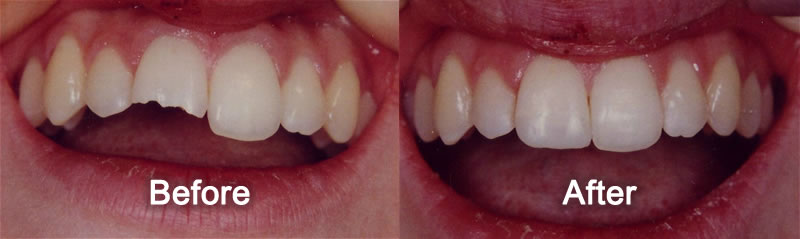 Woodstock Dentist - Smile Gallery - Cosmetic Bonding
