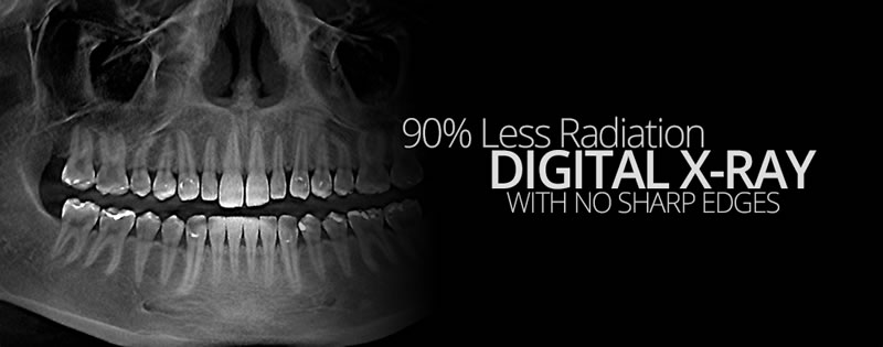 Woodstock Dentist - Checkups & Cleanings - Digital X-Rays