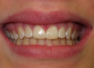 Woodstock Dental - Cosmetic Bonding Procedure - after image