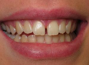 North York Dentist - cosmetic bonding - before