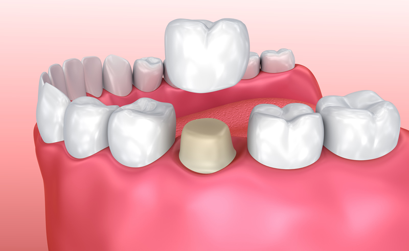Woodstock Dentist - Crowns-Bridges-Dentures - Crowns Restoration