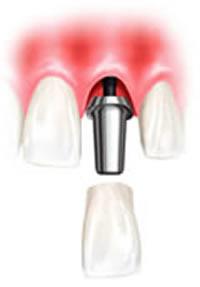 Dental Implants -Supported Dentures