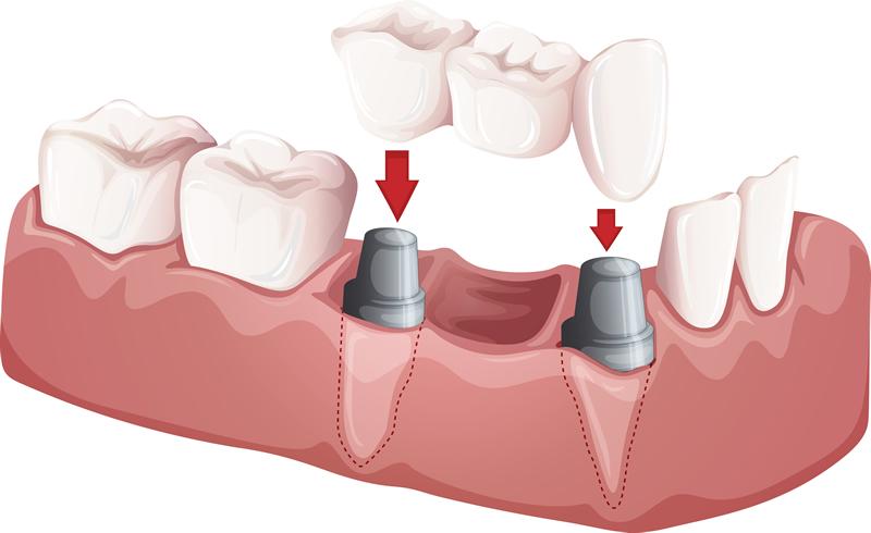 Dental Implants - North York Dentist - Supported Crowns & Bridges