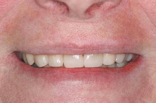 Wodstock Dentist - Full-Mouth Makeovers - After photo