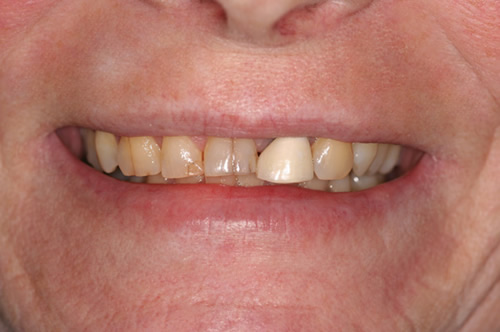 Woodstock Dentist - Full-Mouth Makeovers - Before photo