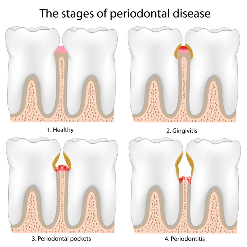 Woodstock Dentist - Gum Disease Therapy - Stages of periodontal disease