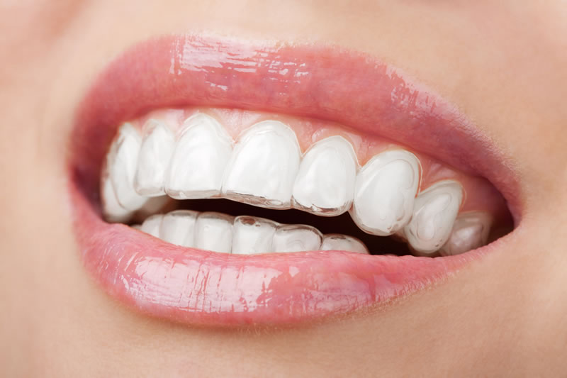 Orthodontics - Invisalign® clear aligners