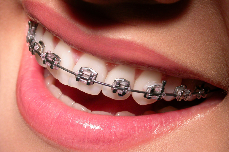 Orthodontics - Traditional Braces image