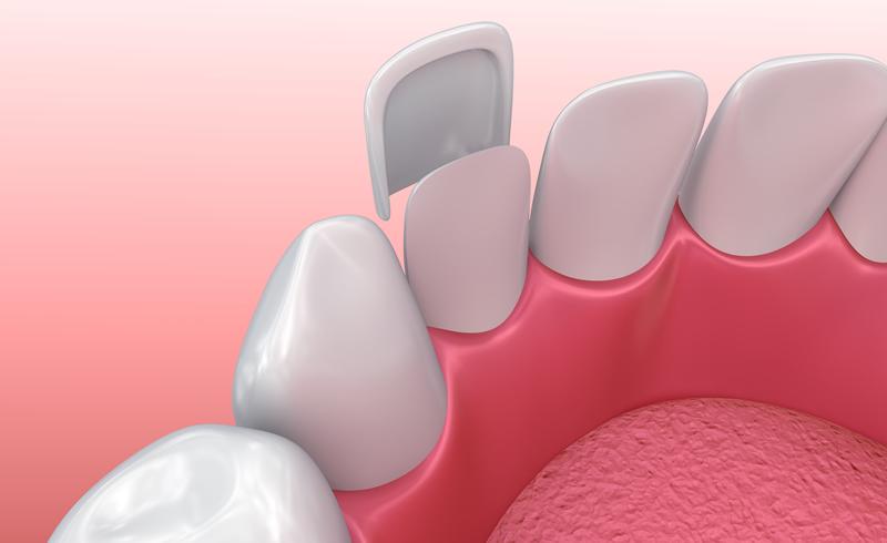 Woodstock Dentist - Porcelain Veneers - Illustration