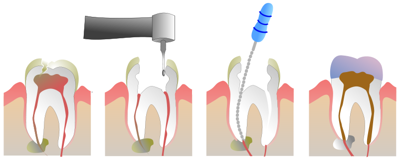 Woodstock Dentist - Root Canal Therapy - Treatment Process