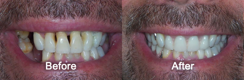 Woodstock Dentist - Gallery - Smile Makeover