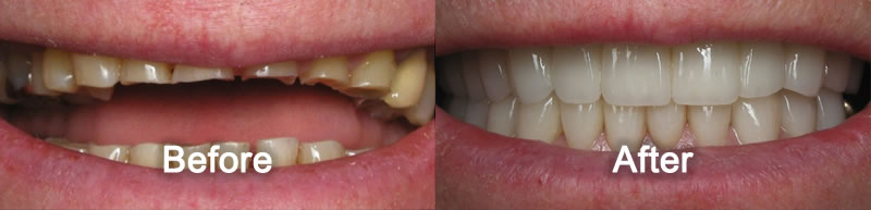Woodstock Dentist - Smile Gallery - Porcelain Veneers