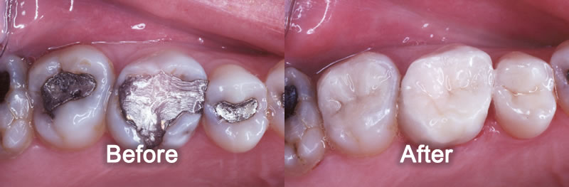 Woodstock Dentist - Smile Gallery - White Fillings