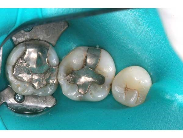 Safe Amalgam Removal - teeth with mercury amalgam fillings with rubber dam isolation