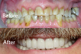 Woodstock Dentist -Full Mouth Makeovers-before and after