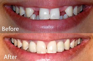 Woodstock Dentist - Dental Implants