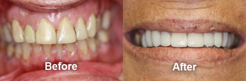 woodstock-dentist-smile-gallery-crowns-before-after