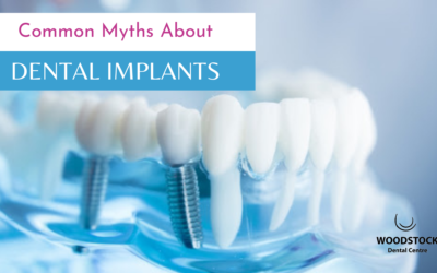 Common Myths About Dental Implants